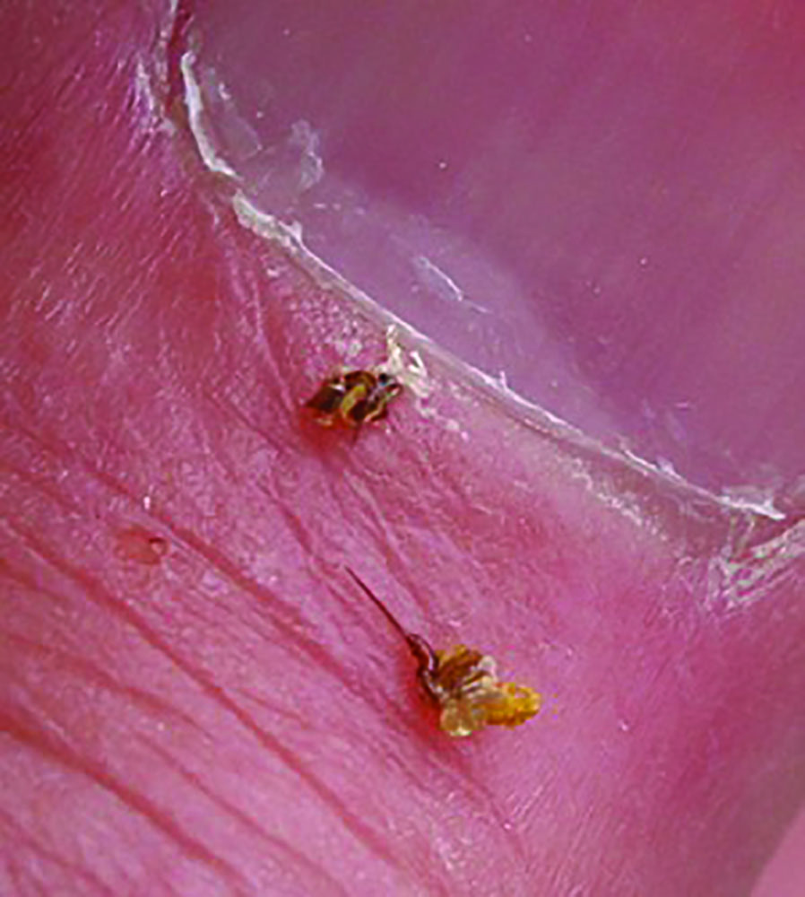 Bee stings that have been removed.