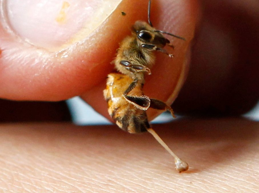 CATCH THE BUZZ – Australian Bee Sting Vaccine Trial Holds Promise Against Allergic Reactions.